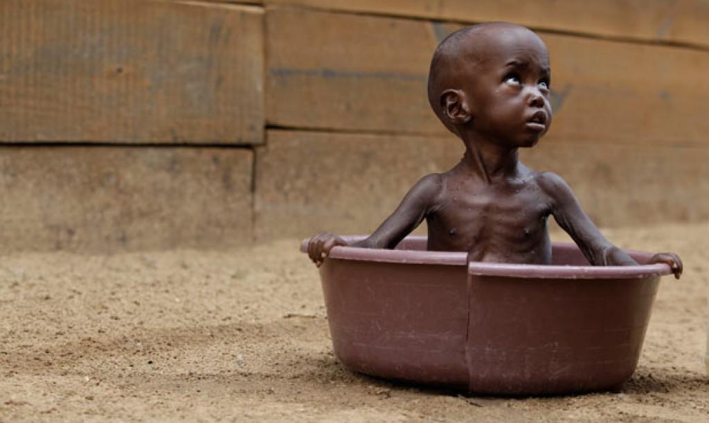 Carestia Corno d'Africa
